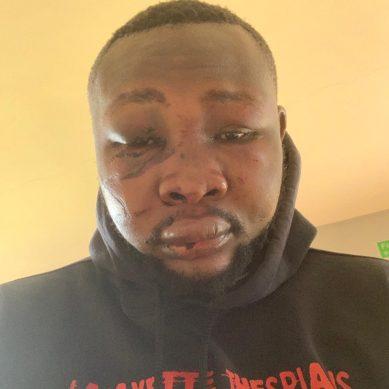 Sh. 5 million drugs linked to City assault by Makadara aspirant Momanyi